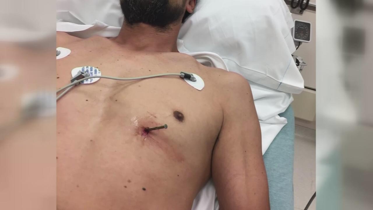 Man accidentally shoots nail into heart, drives to hospital