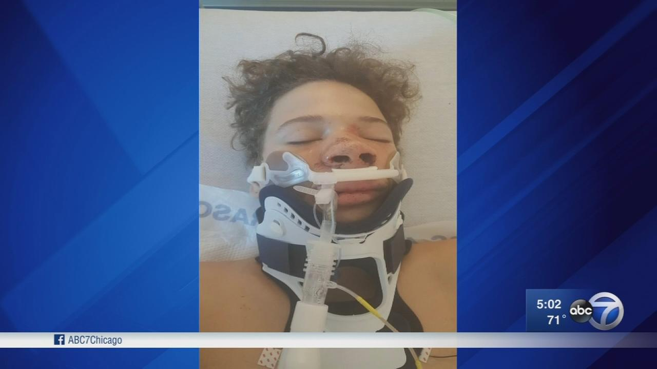 Teen attacked after HS football in NW Indiana