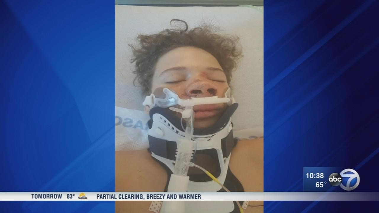 Teen attacked after high school football game