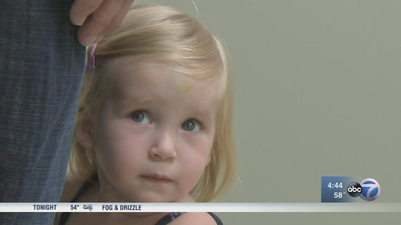 Toddler who received experimental childhood Alzheimers treatment in Chicago doing well