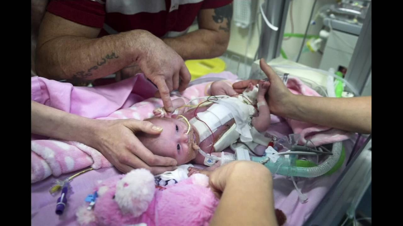 Graphic Video: Baby born with heart outside her body