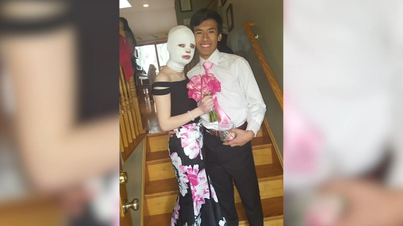 Friends bring prom to girl burned in Glendale Heights fire bit explosion