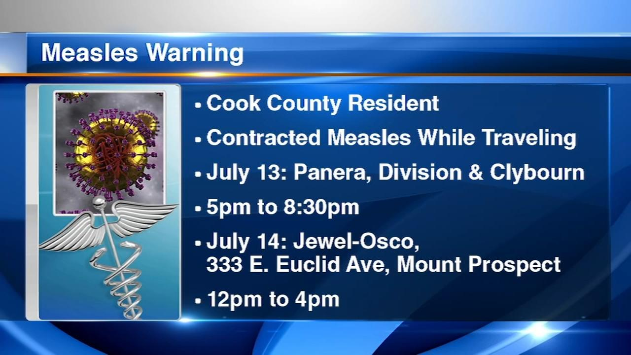 Alert issued for possible measles exposure in Cook County