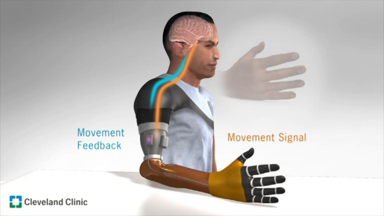 New bionic prosthesis restores sense of touch