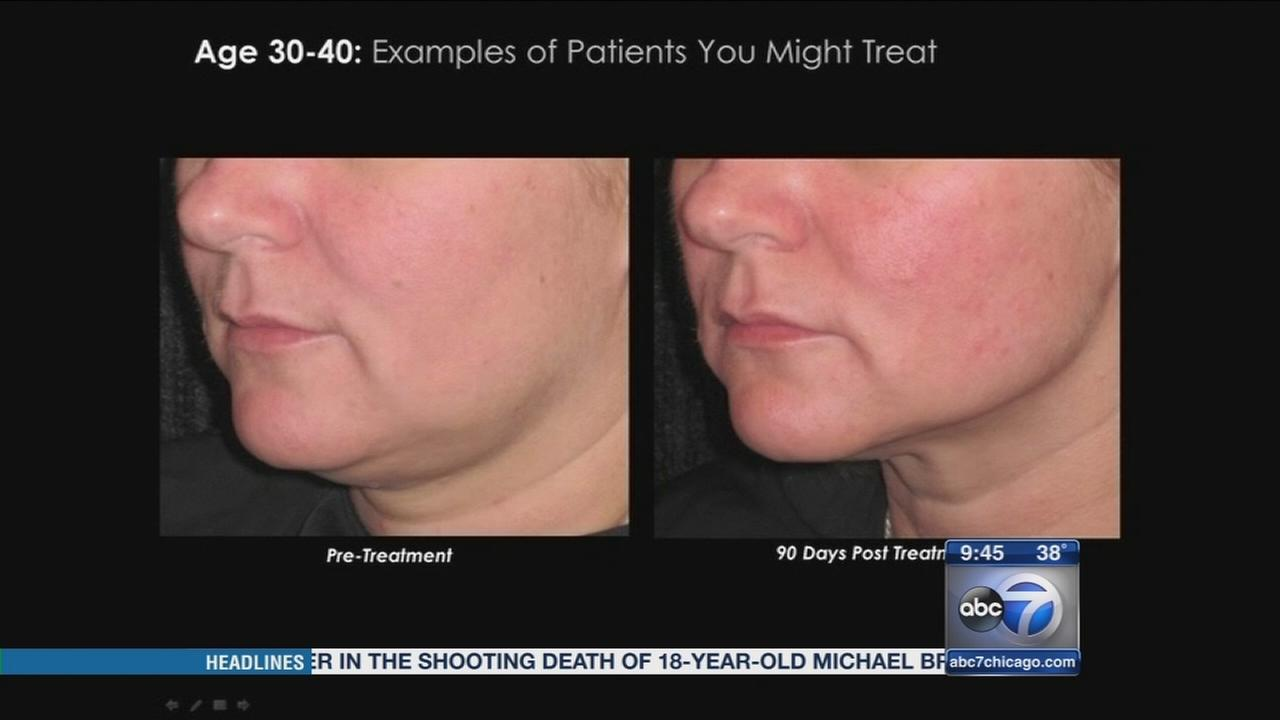 Ul-therapy a new, non-invasive way to erase wrinkles