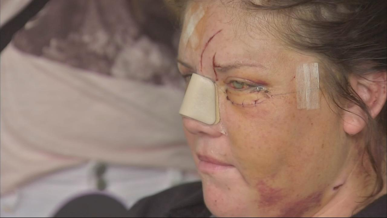 Willowbrook attack victim speaks after hospital release