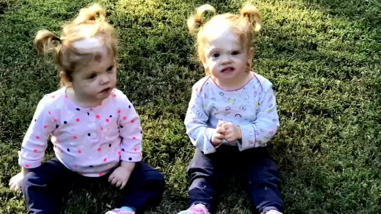 One year later, formerly conjoined twins learning to grow independently - Ali Gorman reports during Action News at 5pm on January 23, 2019.