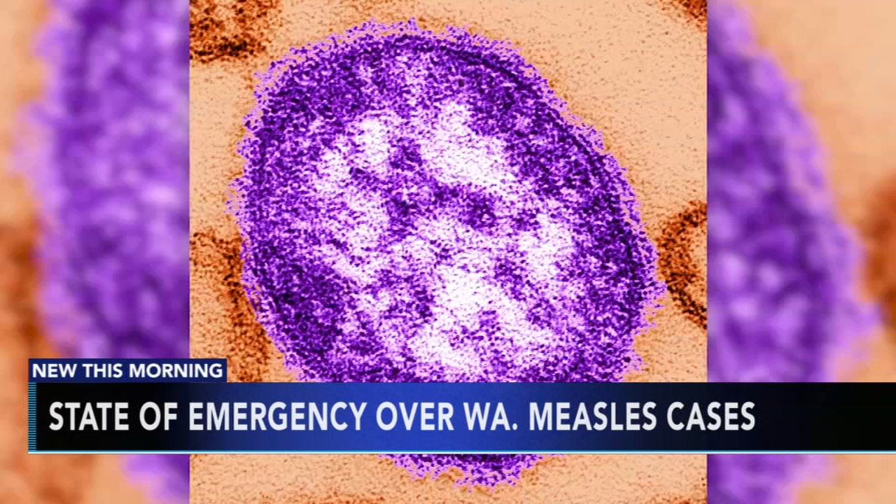 Measles outbreak grows in northwest US, 31 cases reported. Gray Hall reports during Action News at 7 a.m. on January 26, 2019.