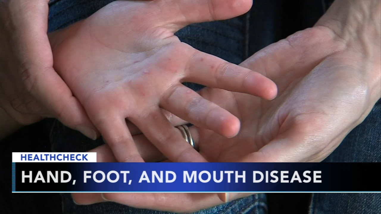 Doctors seeing spike in hand, foot and mouth disease: Ali Gorman reports during Action News at 5pm on August 21, 2018.