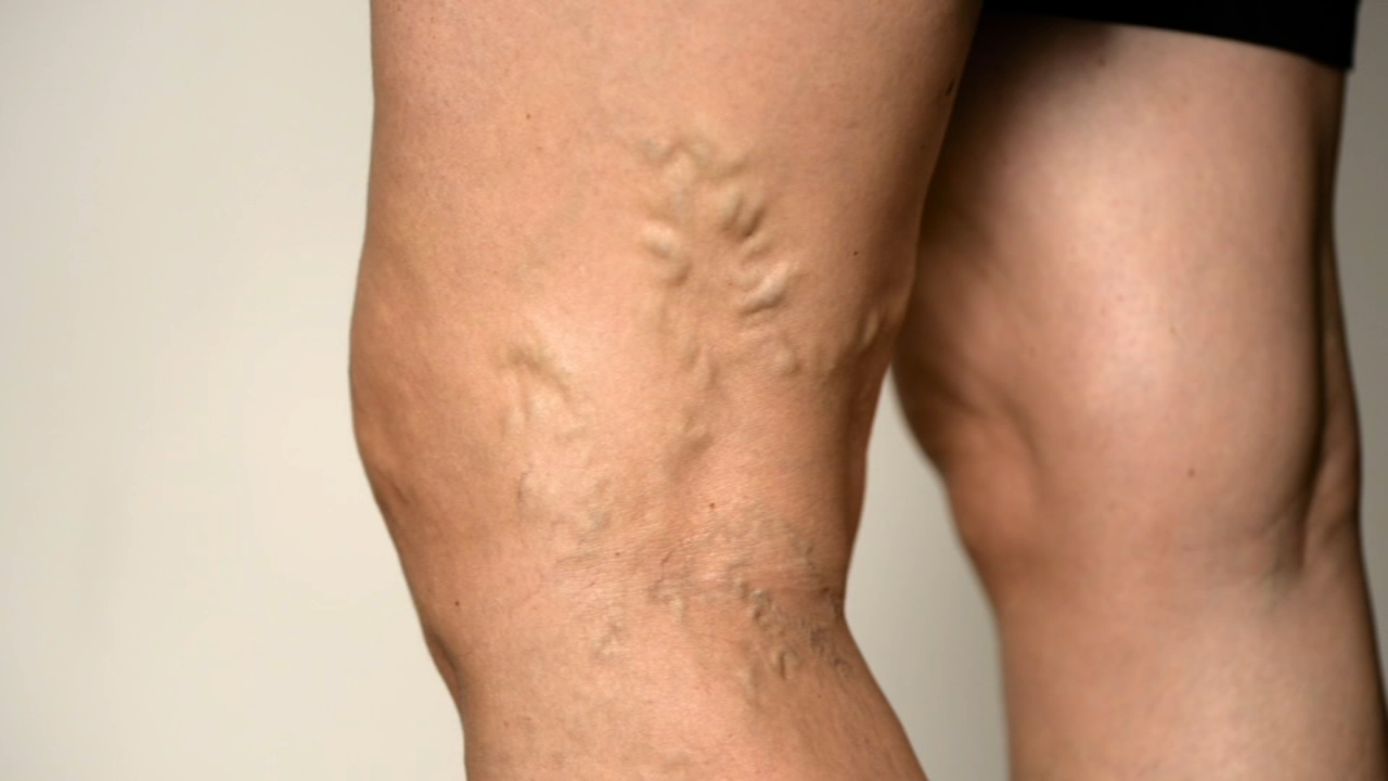 Todays Tip: Varicose Veins. Ali Gorman reports during Action News Mornings on November 12, 2018.