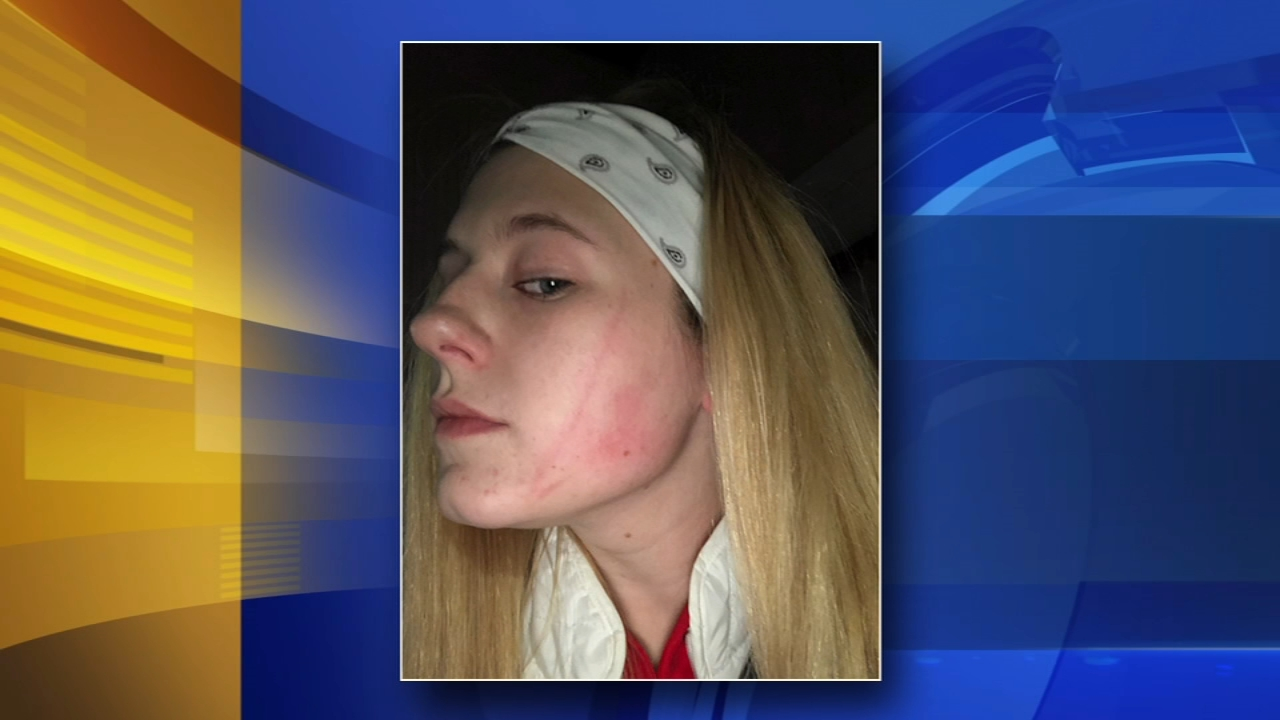 Teens attacked at Deptford Mall: John Rawlins reports on Action News at 5 p.m., December 10, 2018