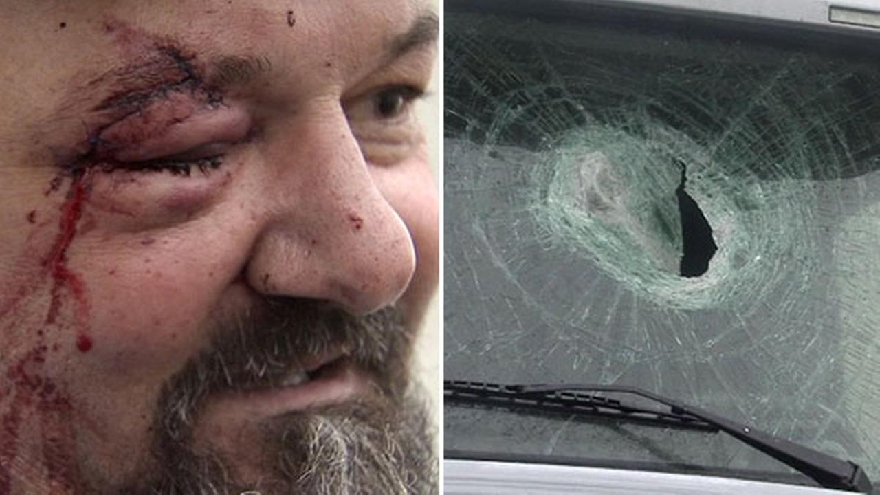 Brick thrown from overpass hits trucker in face