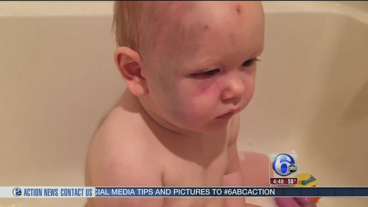 VIDEO: Picture of abused Oregon toddler goes viral