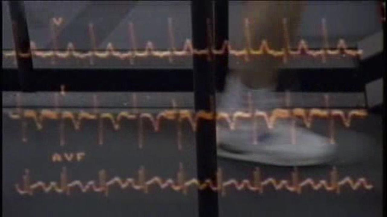 New tool to predict heart problems