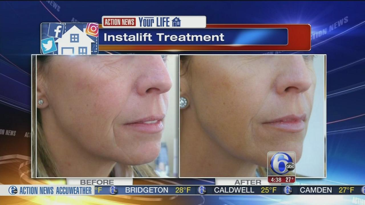 Your Life: New trends for new looks without surgery