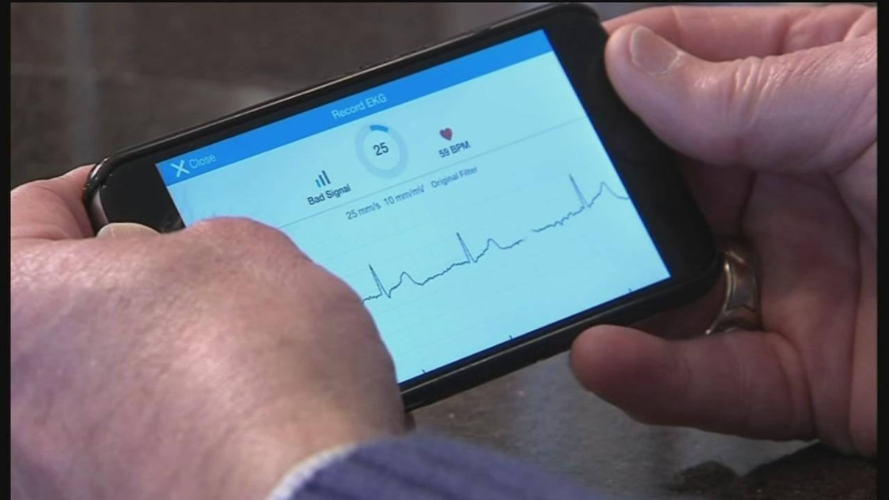 Mobile EKG monitor