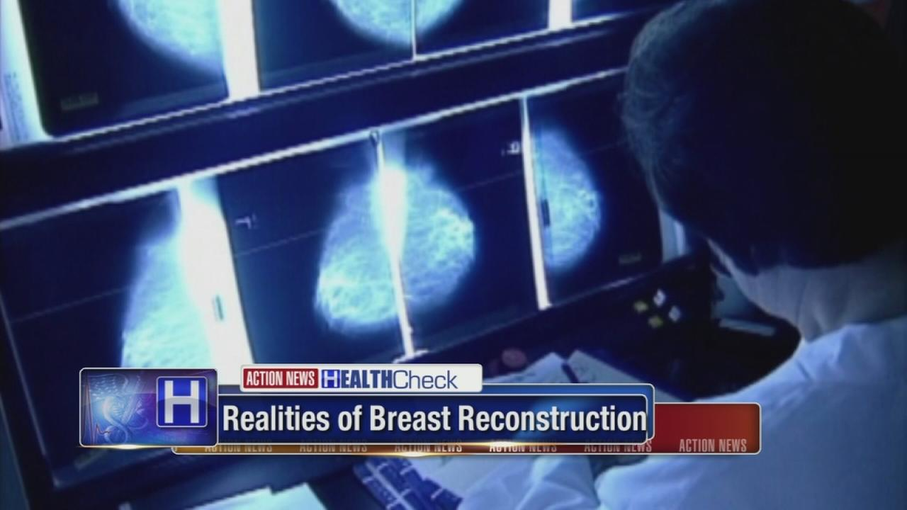 Are too many women having breast reconstruction?