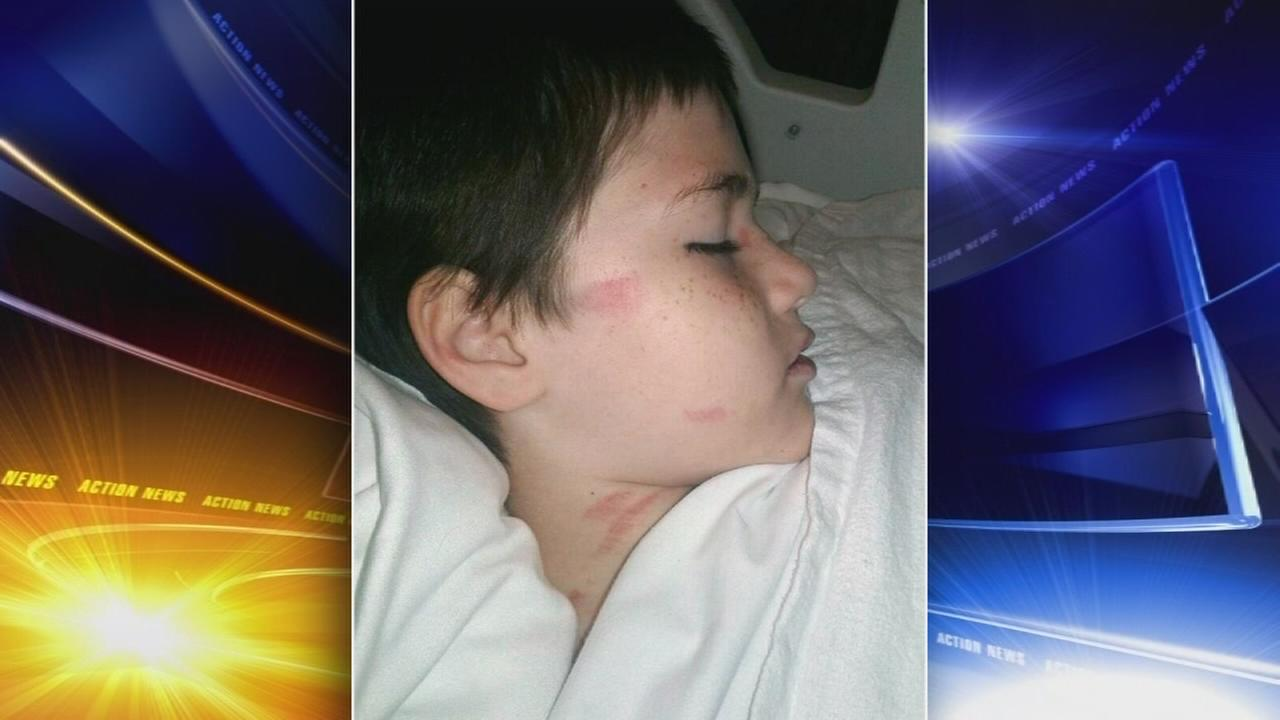 Boy injured when tombstone falls on him in cemetery