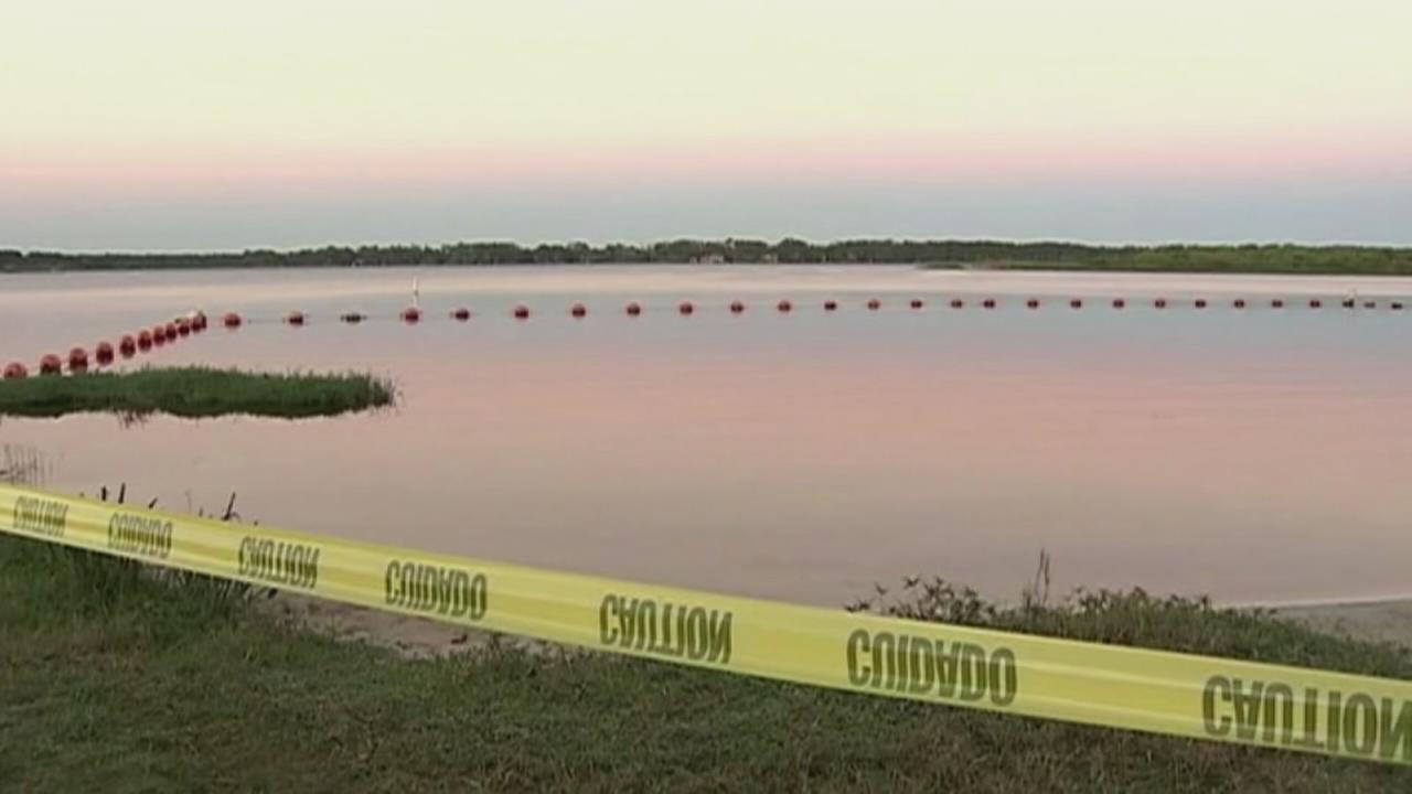 VIDEO: 10-year-old Florida girl bitten by alligator