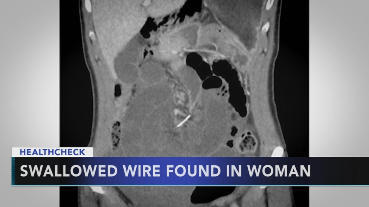 Woman has swallowed braces wire surgically removed 10 years later