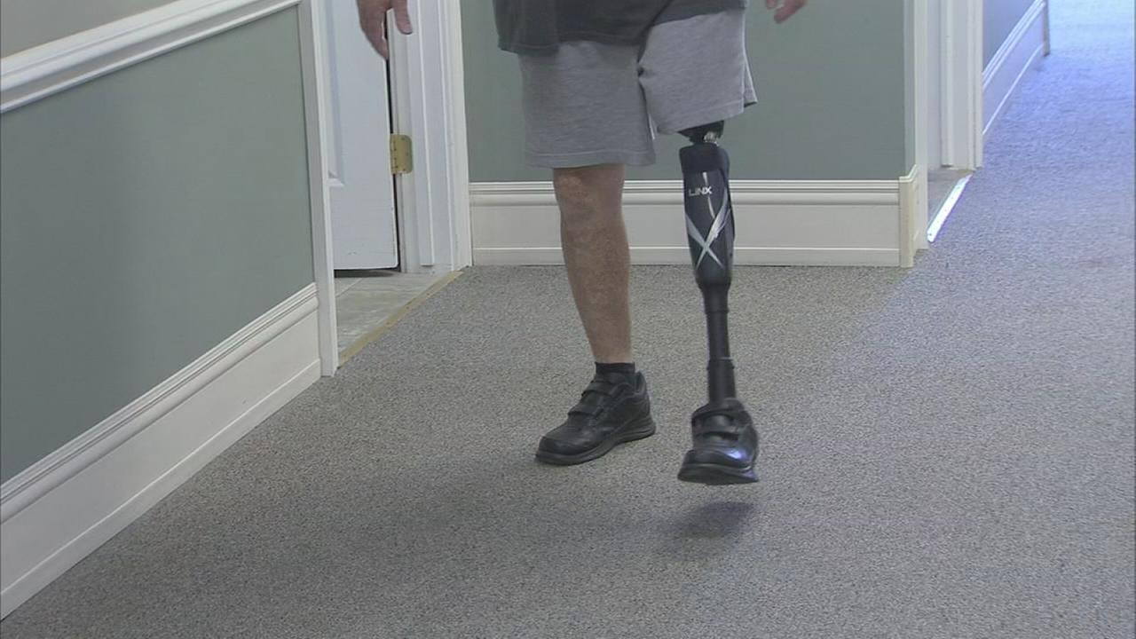 Bionic leg is giving amputees life changing help