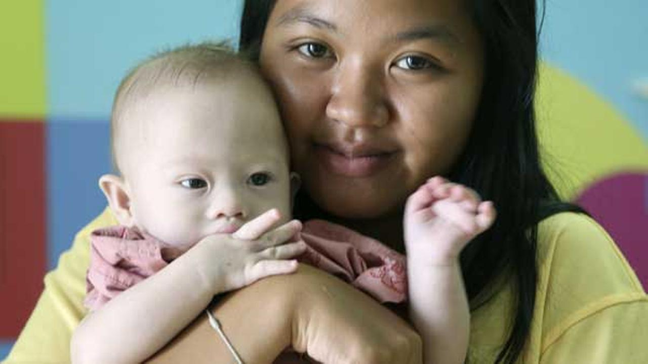 Pattaramon Chanbua, 21, poses her baby boy Gammy at a hospital in Chonburi province, southeastern Thailand Sunday, Aug. 3, 2014.