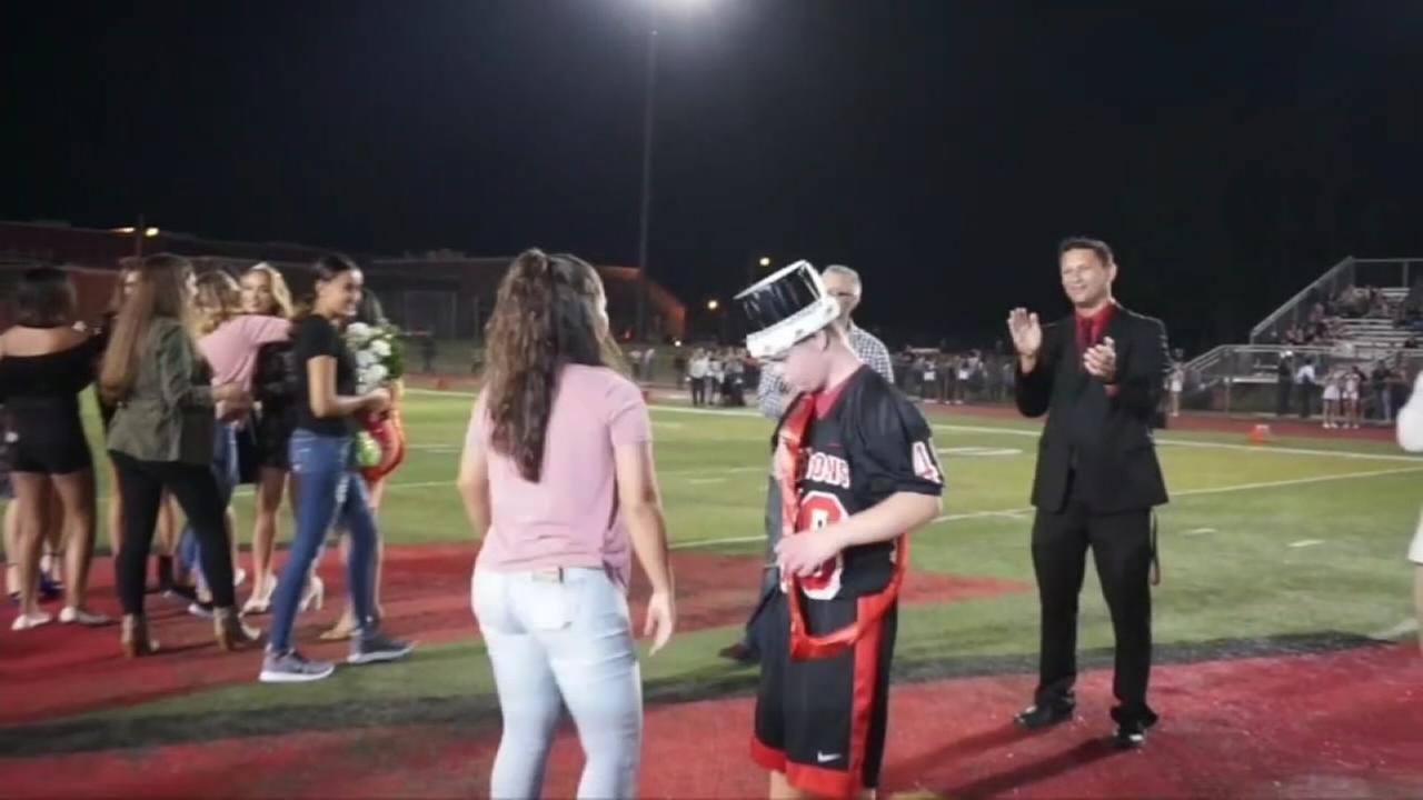 Student with Down syndrome named homecoming king
