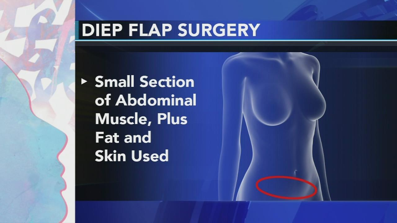Beating the Odds: Diep flap surgery