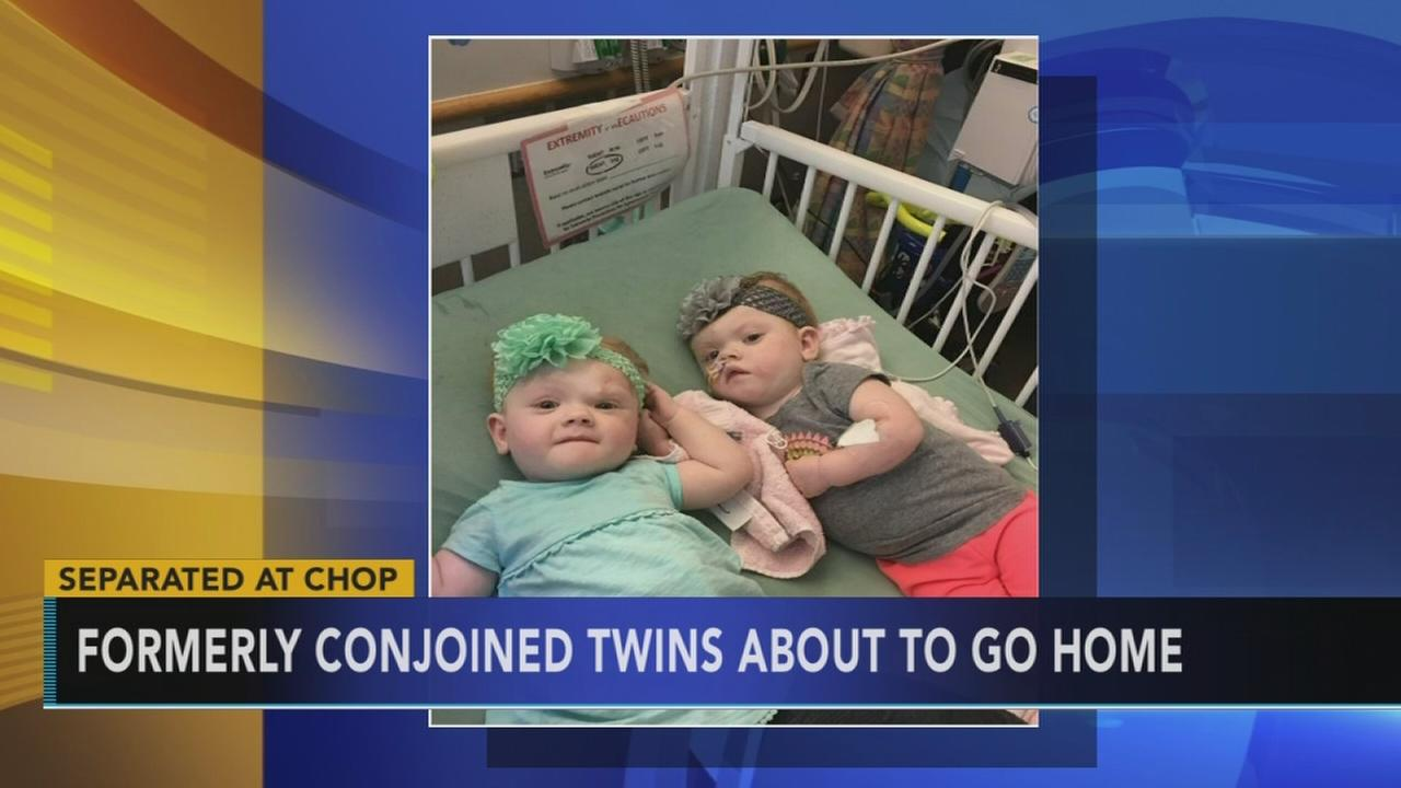 Formerly conjoined twins about to go home