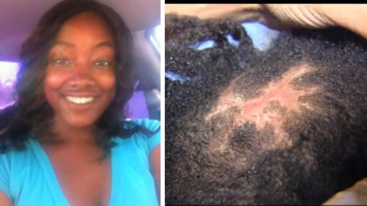 Painful Danger Of Black Market Hair Extensions 6abc