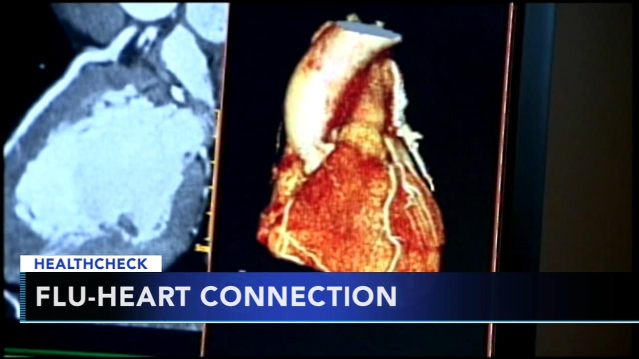 The effects of the flu on the heart