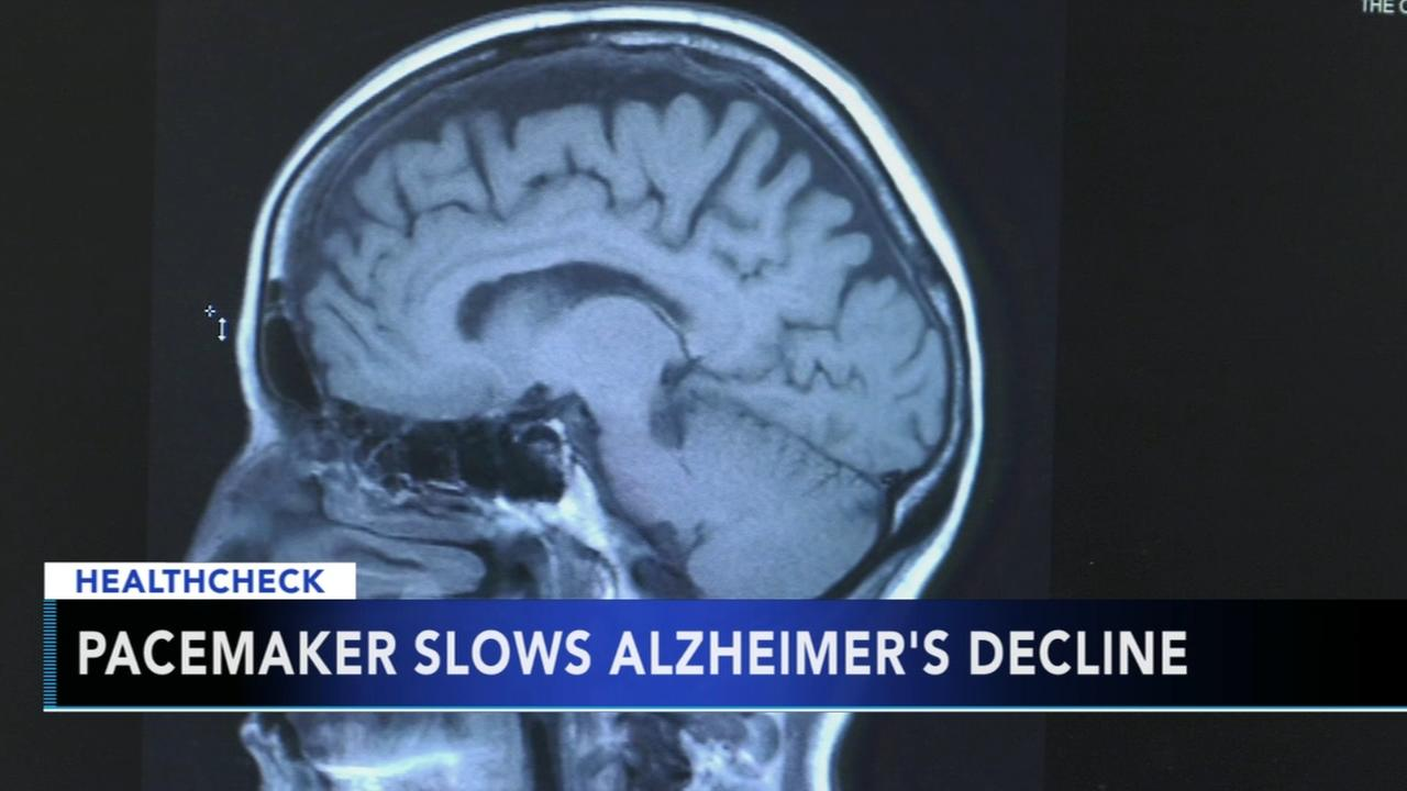 Brain pacemaker keeps Alzheimers patients functioning
