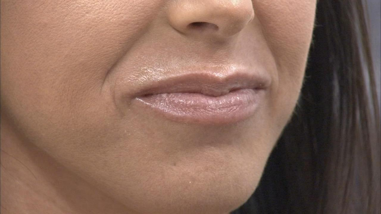 Healing your dry winter lips; exclusive offers for 6abc viewers