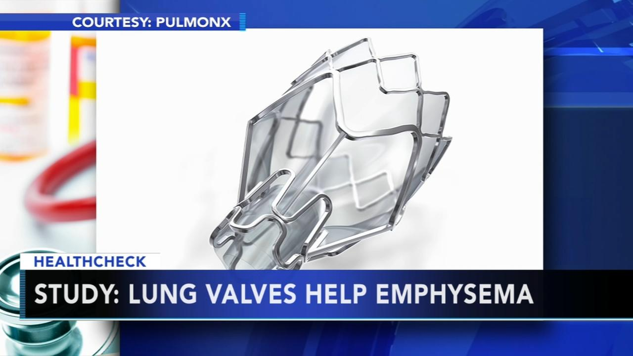 Study: Lung valves help Emphysema