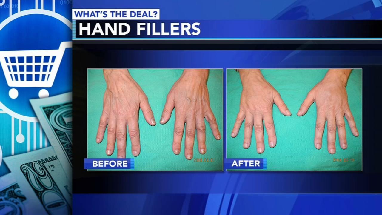 FDA approves popular facial filler for hand rejuvenation