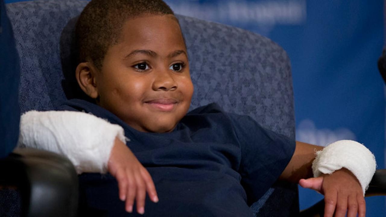 Double-hand transplant recipient eight-year-old Zion Harvey smiles during a news conference Tuesday, July 28, 2015, at The Childrens Hospital of Philadelphia (CHOP).