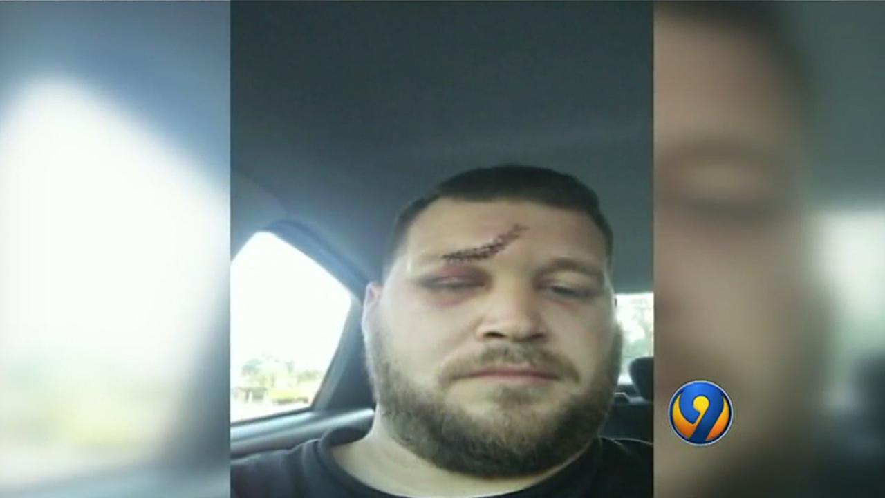 Amputee robbed, beaten by girlfriend's ex-husband, police say