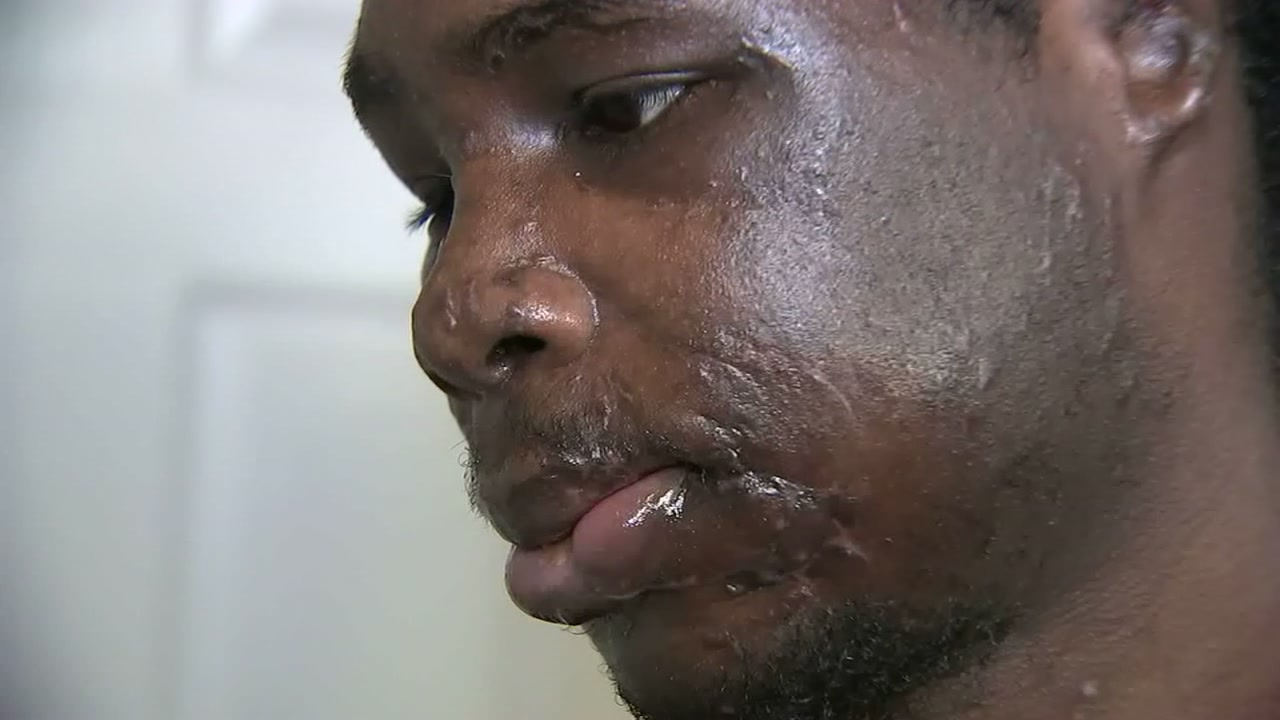 A man is recovering after being attacked by his roommates two pit bulls.