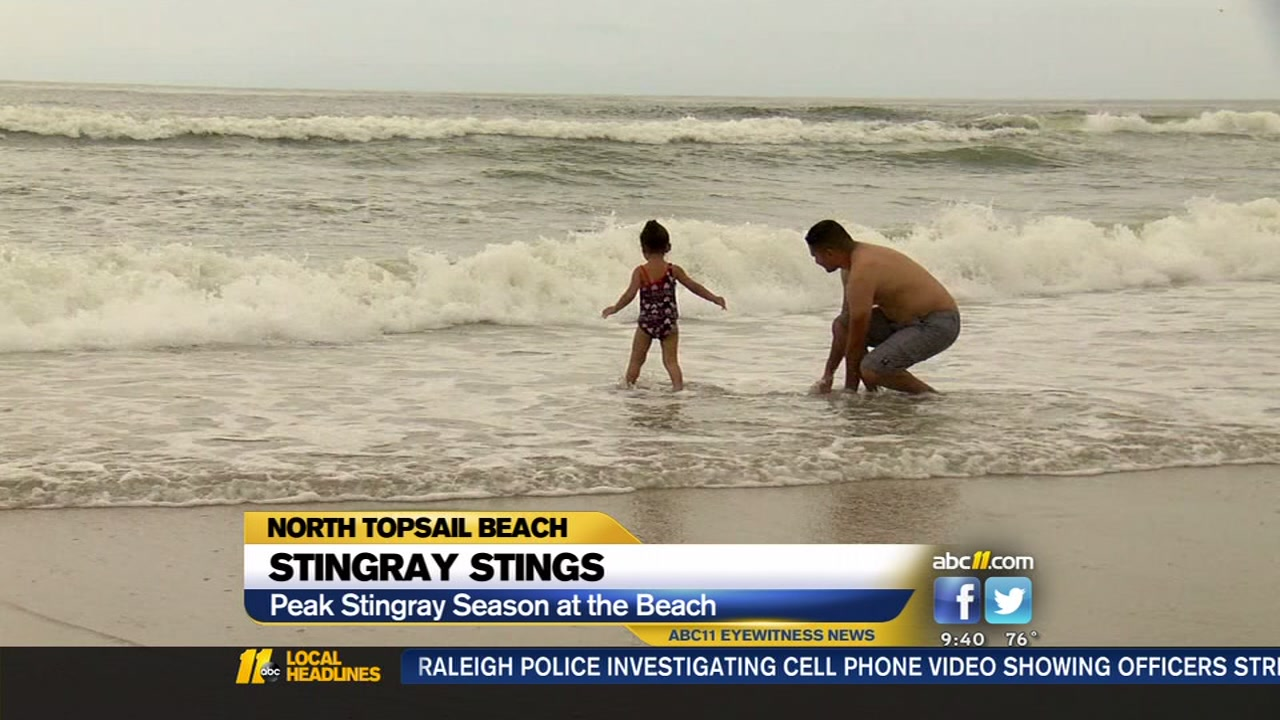 Multiple reports of stingray stings at NC beach