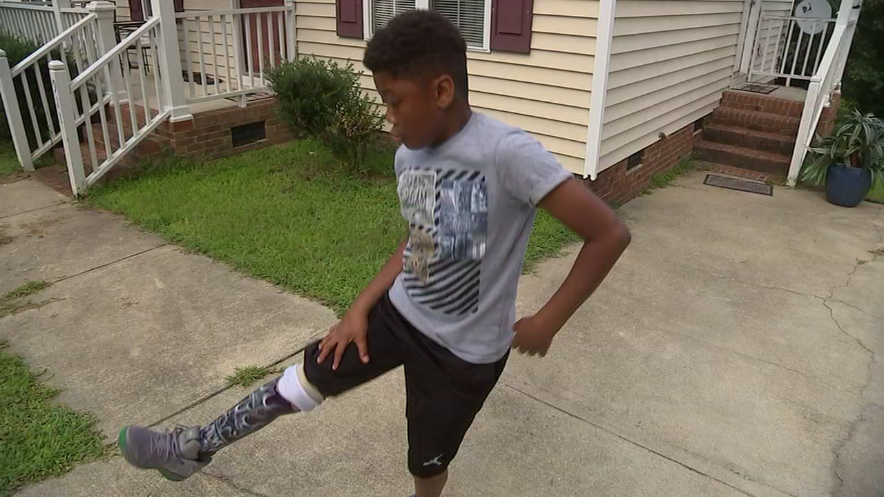 We revisited with Michael Mack Jr., who showed off his dance moves and ball skills despite his prosthetic leg.