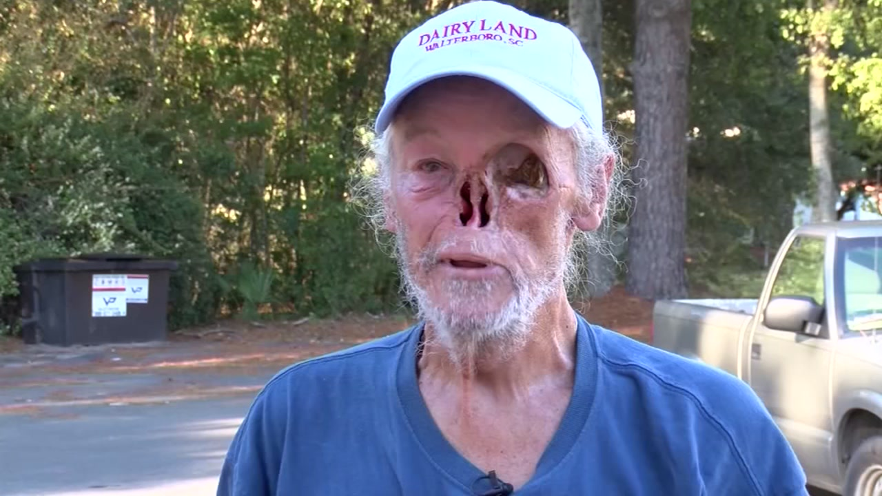 SC man who lost nose, eye to cancer told to cover face at restaurant