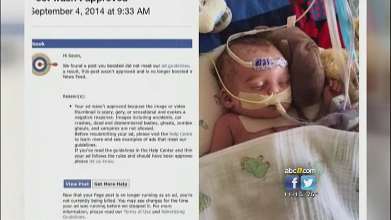 Facebook does about-face on advertisement for sick infant