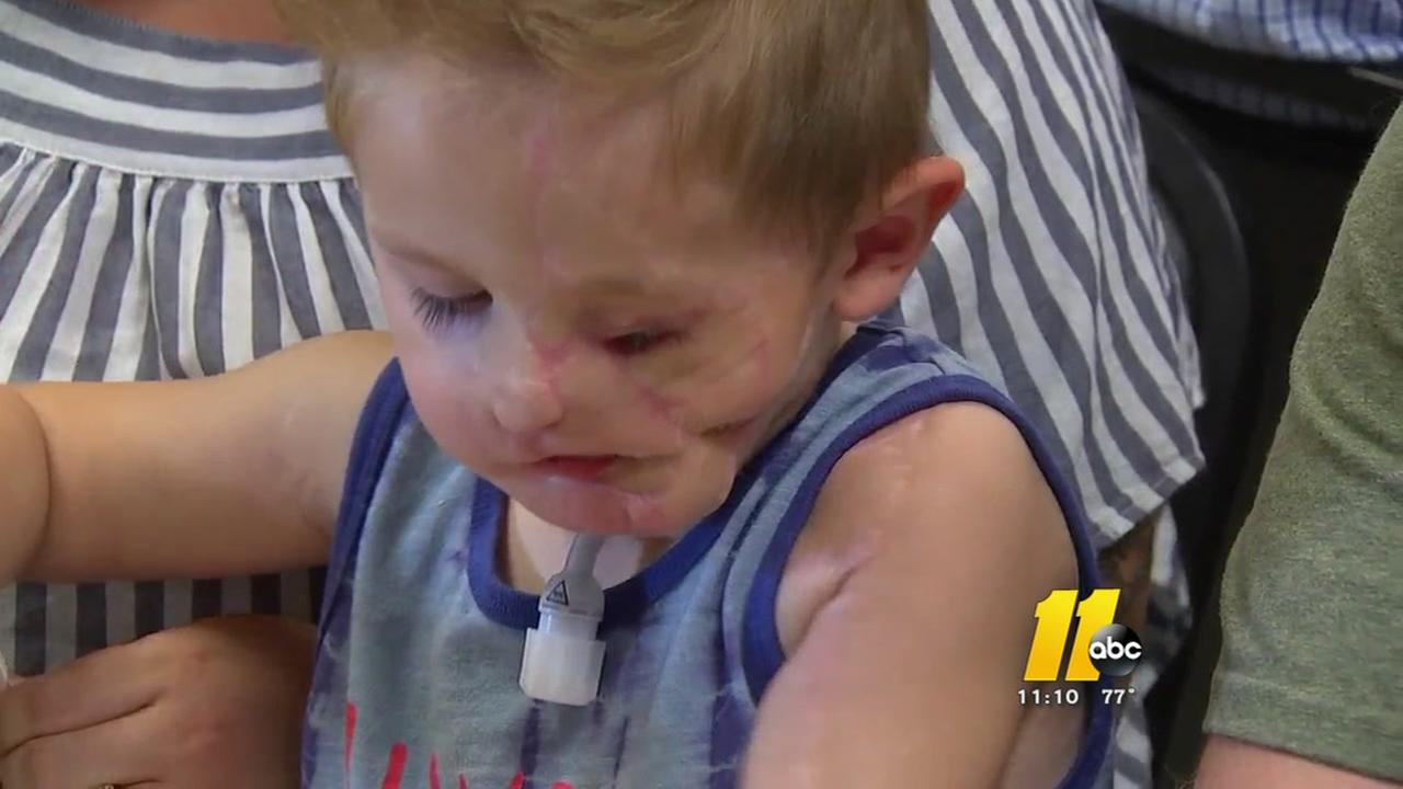Fundraiser hopes to help little boy who was victim of violent dog attack