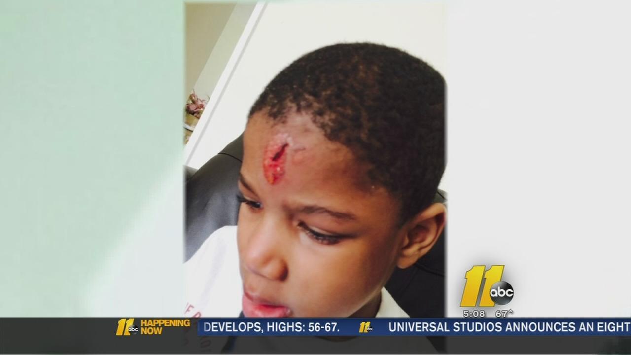 Autistic boy injured on school bus