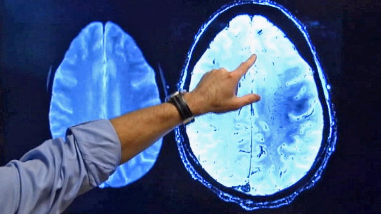 The brain is seen on a scan in this undated file photo.