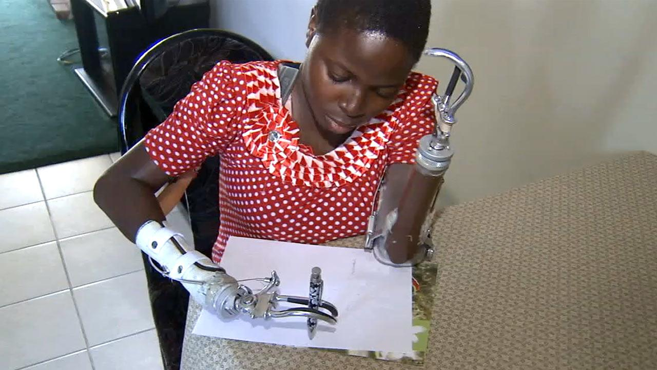 Ruth Idowu, 19, lost her arms in a machete attack in Nigeria. In this photo from Monday, Nov. 19, 2012, she learns to write using her artificial limbs.