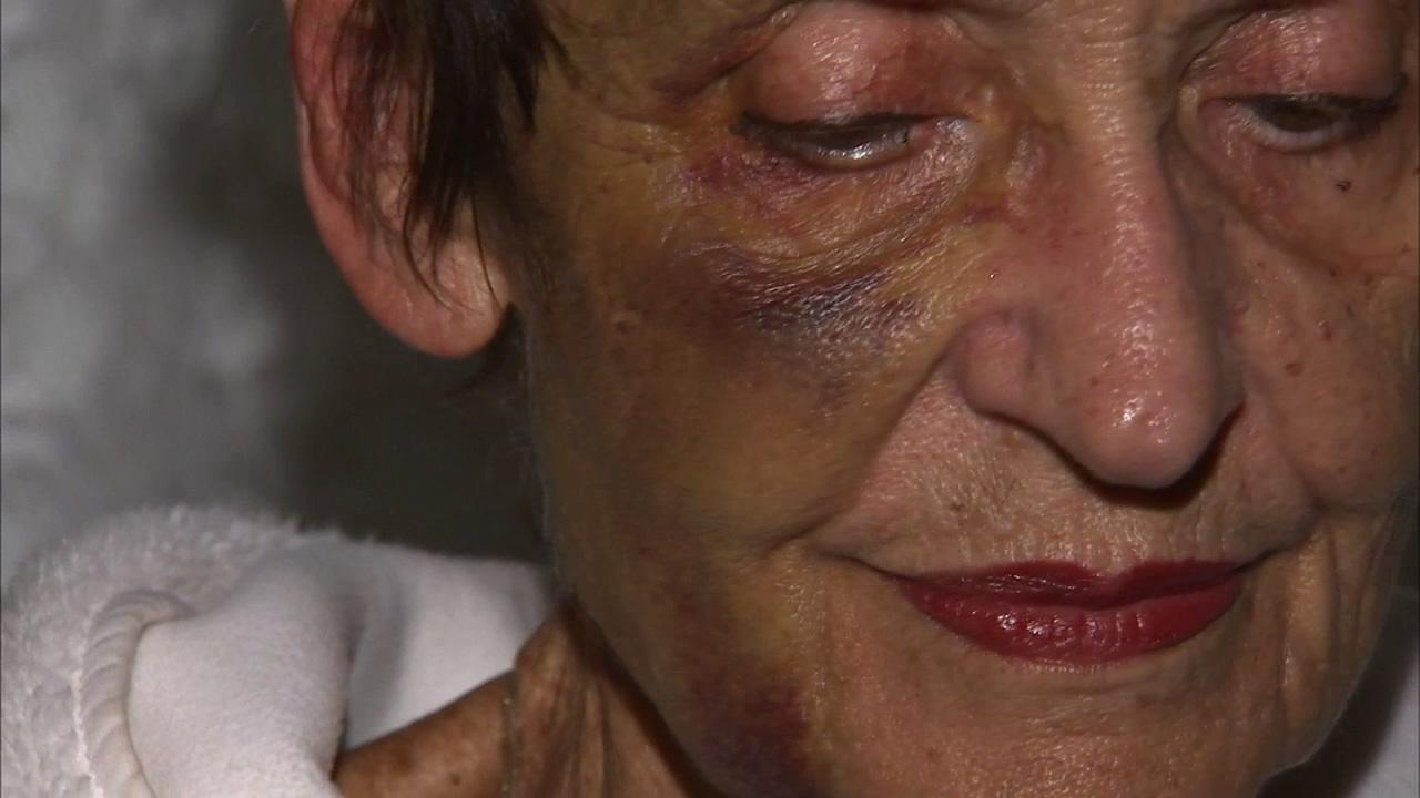 Josephine Nash, 86, was attacked as she was leaving a Rite Aid store in the 900 block of Kendall Avenue in San Bernardino, police said.
