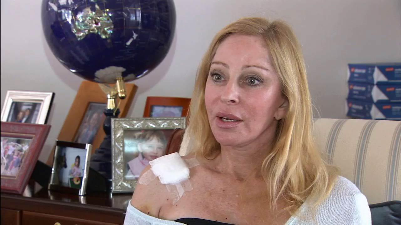 Debra Fine was shot as she was trying to distract the Santa Monica gunman, who had his gun pointed at someone else. Fine was being released from the hospital on Sunday, June 9, 2013 and is now recovering.