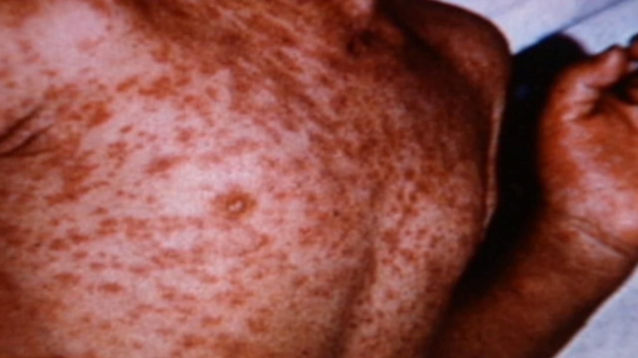 A person infected with measles is shown in this undated file photo.