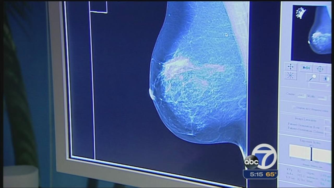 Study: Mammograms before 50 could save lives